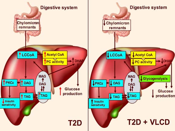 Perry et al show that three days of a VLCD lowered plasma glucose and insulin concentrations in a rat model of type 2 diabetes (T2D) without altering body weight. Image credit: Perry et al, doi: 10.1016/j.cmet.2017.10.004.