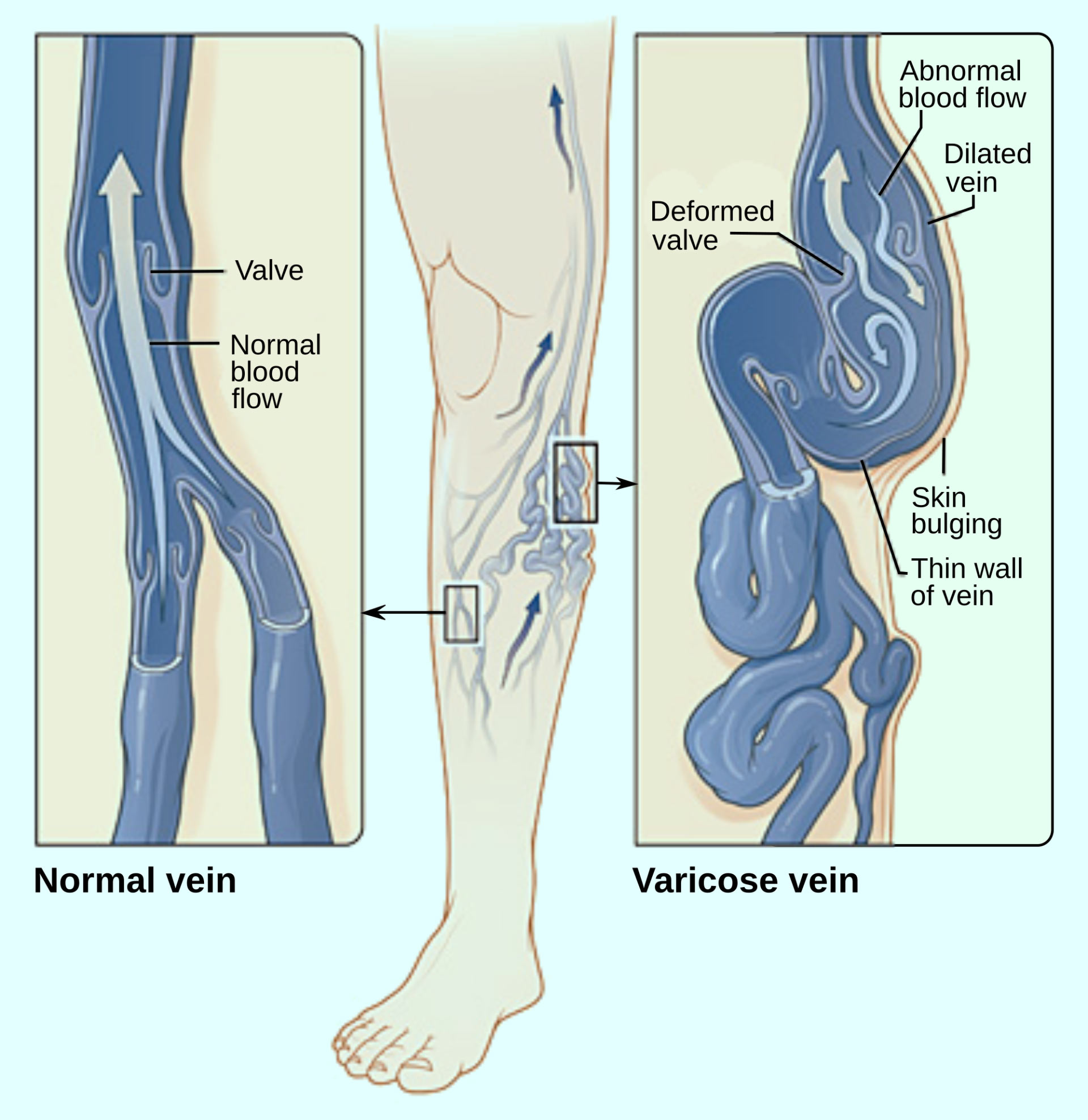 Varicose Veins Linked To Increased Risk Of Deep Venous Thrombosis