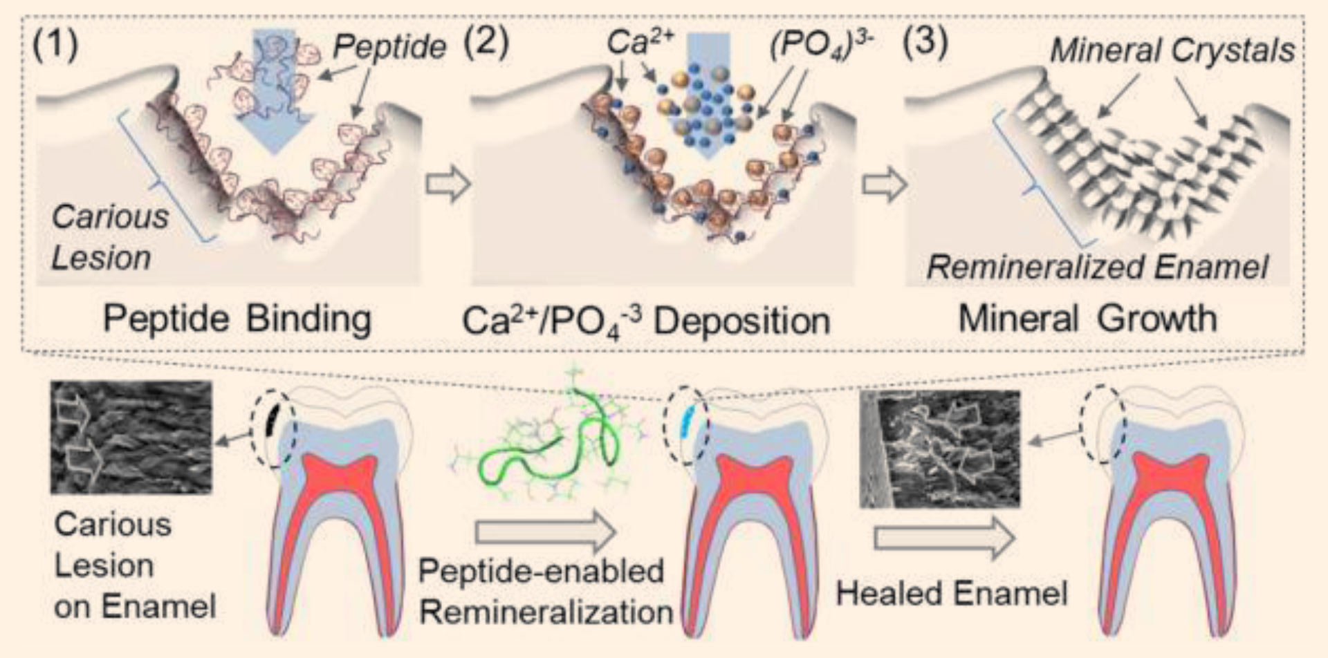New biogenic dental product rebuilds tooth enamel treats cavities schematic illustration of peptide guided biomimetic tooth repair technology image credit dogan et ccuart Gallery